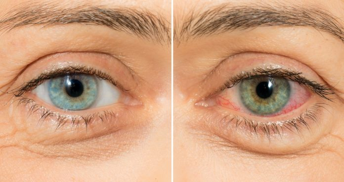 cannabis vision oeil rouge